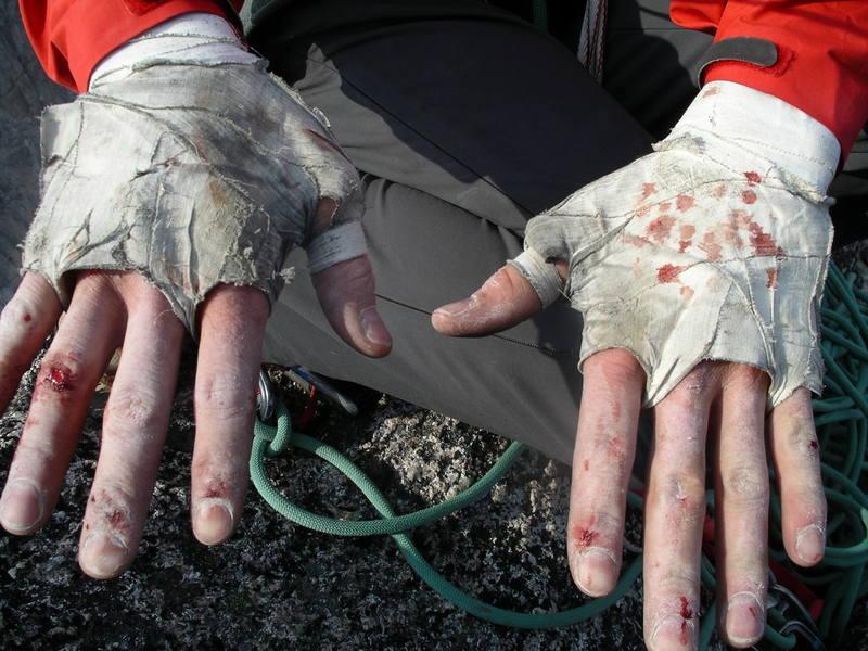 My well worn hands after Sunshine Crack.