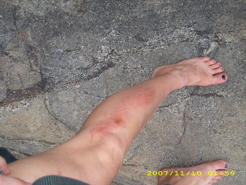 This is what can happen when you boulder on slabs.