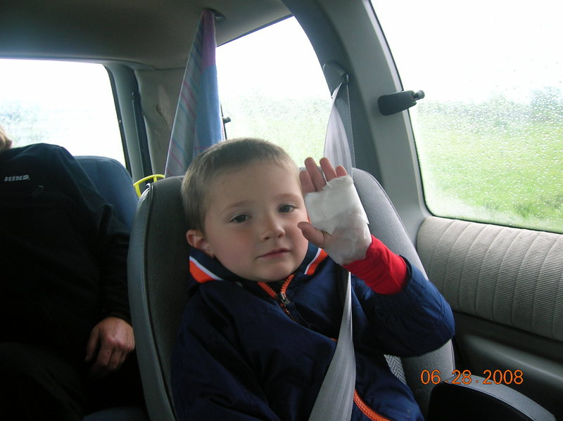 Aiden after a hard day of climbing at Red Wing shows off his bandaged hand
