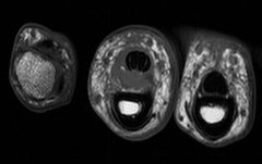 Rock Climbing Photo: Complete A2 Pulley Rupture:  MRI of my finger Octo...