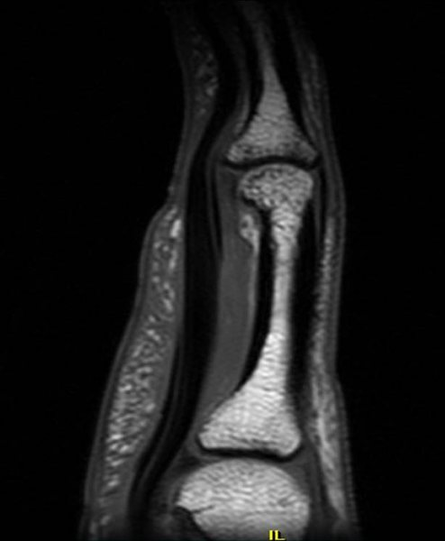 Complete A2 Pulley Rupture:  Long view of the finger showing that the tendon (black, on the left) is no longer tethered to the bone (white) and there is a large amount of gray fluid in between.  Normally the tendon would be tight up against the bone, held together by the pulley.