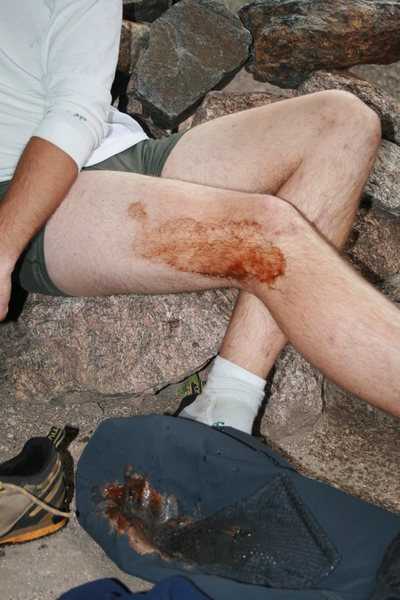 mikes leg at the end of the day.  the infamous north chimney incident. mike thought it would be cool to reenact what charlie fowler did. looks like blood.  Ha!  just a smooshed GU packet. mmm ,it does go well with the chicken.  right again peter.