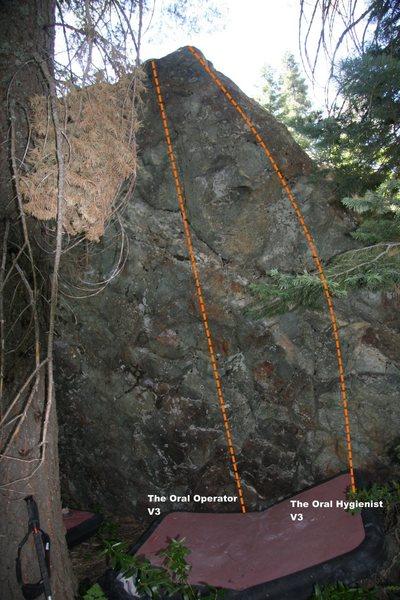 Rock Climbing Photo: Oral Boulder Right II Topo