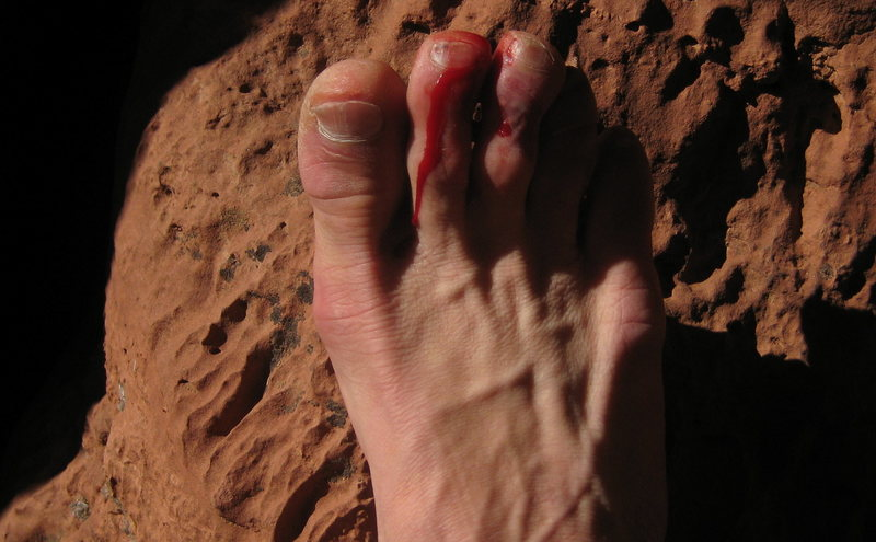 Some very sore toes after the inadvertent cleaning of said block.