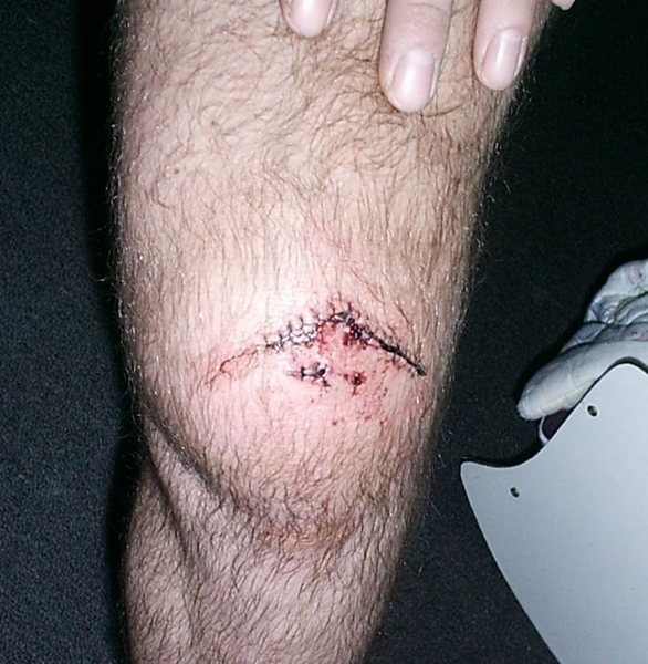 19 stiches if I remember right