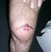 Rock Climbing Photo: 19 stiches if I remember right