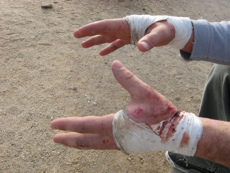 Mangled Hands after two weekends of the wide. This route sealed their fate.<br> Photo by beny.