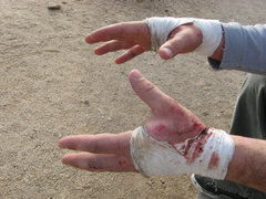 Rock Climbing Photo: Mangled Hands after two weekends of the wide. This...