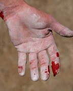 Rock Climbing Photo: James otey's hand after his onsight attempt... He ...