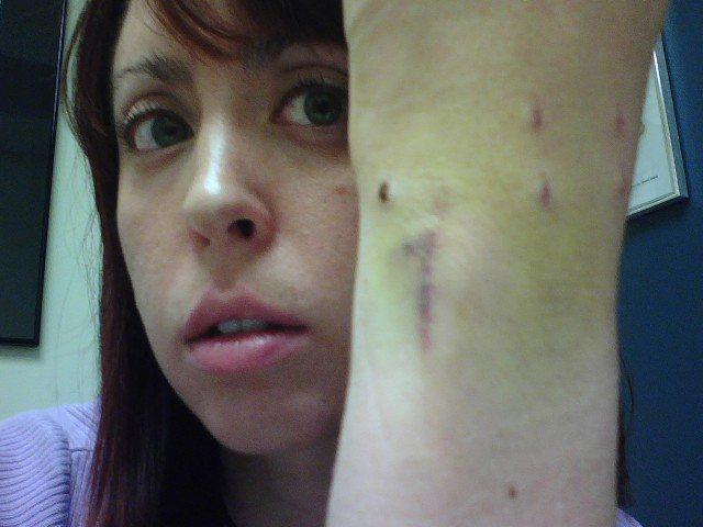 Rock Climbing Photo: One week post-TFCC debridement surgery.  October 2...