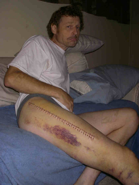 Rock Climbing Photo: Unhappy guy with 36-stich zipper in his leg. But, ...