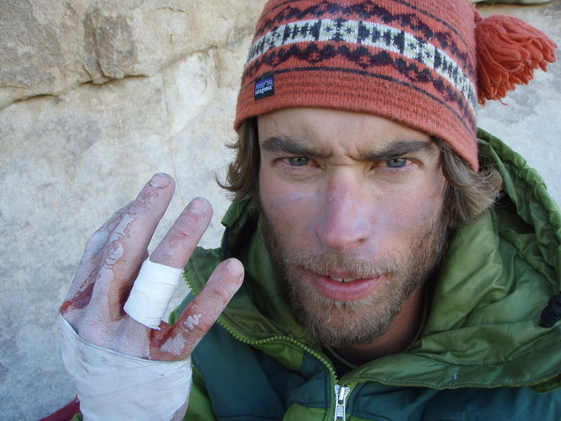 Rock Climbing Photo: After losing the battle with Spiderline...