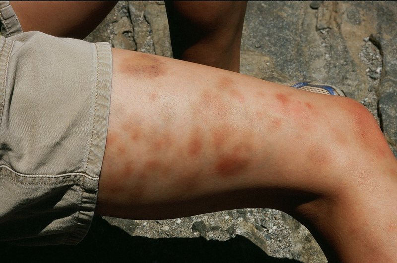 Leg bruises on an anonymous MP.com friend after climbing Steck Salathe. Photo by Tony Bubb, 5/09.