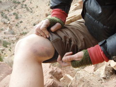 Rock Climbing Photo: Learning how to knee cam has its price: Unnamed 10...