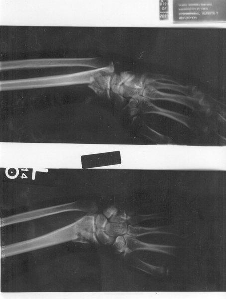 Rock Climbing Photo: Left wrist after bike crash 7/2002