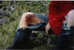 Rock Climbing Photo: Syrett's Knee (and pants)after a fight  with Post ...