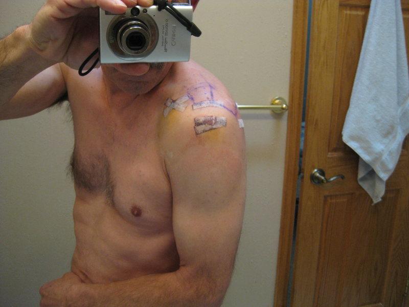 Day 3  Bandage finally off