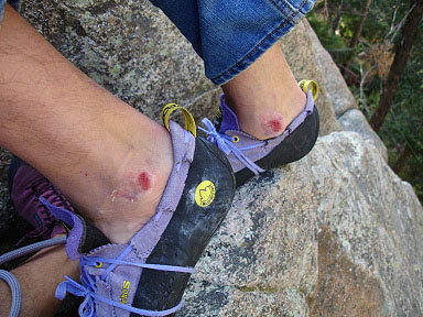 Rock Climbing Photo: DUDE! Your ankles....