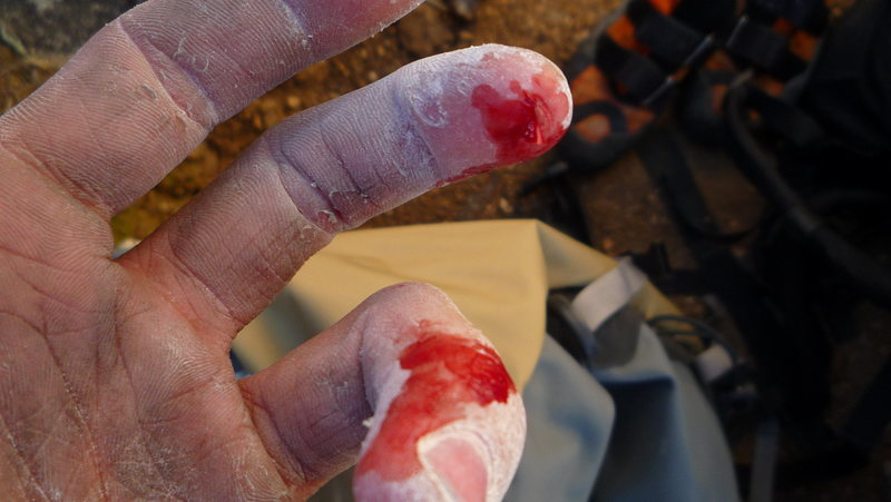 I don't have an actual picture of the climb but this is what it did to me.  Sharp... ouch!
