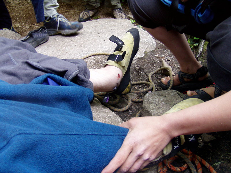 The busted ankle referenced in Pete's story of Up, Up & Away. Not my best moment climbing...