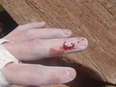 Rock Climbing Photo: This is what this route keeps doing to my finger b...