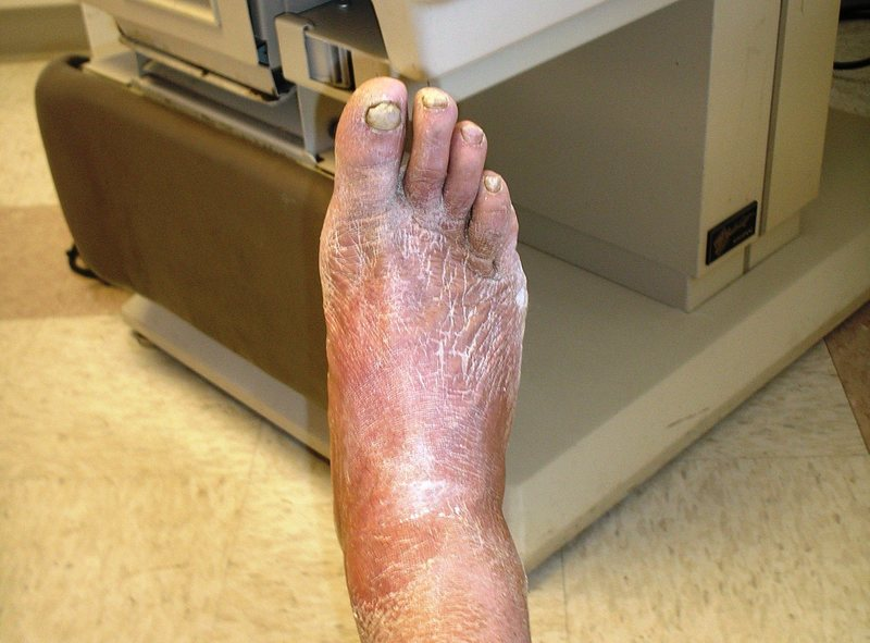 after 8 weeks in a cast