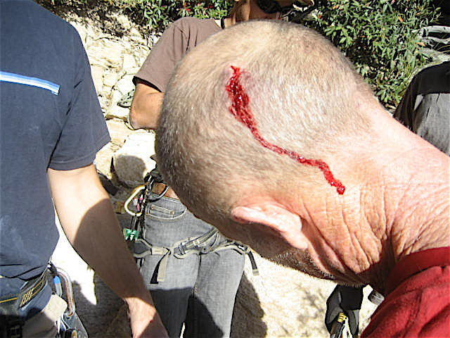Rock Climbing Photo: John,if you landed on your head as many times as I...