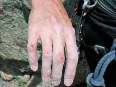 Rock Climbing Photo: results from a stubborn nut....