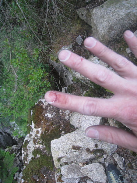 Rock Climbing Photo: Bloodied but not beaten! Not yet anyway...
