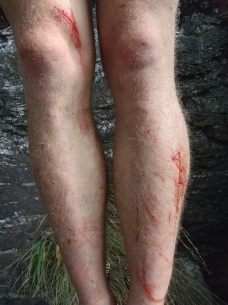 Rock Climbing Photo: Linville bites back.  This is what one must endure...
