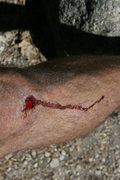 Rock Climbing Photo: What's climbing without some blood.