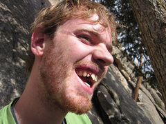 Rock Climbing Photo: What happens when an RP smacks you in the teeth!