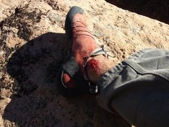 Rock Climbing Photo: There will be blood...