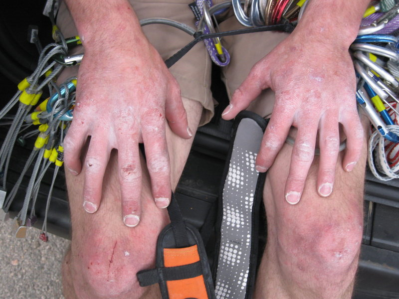 Aaron's hands after a long day at Lumpy Ridge.