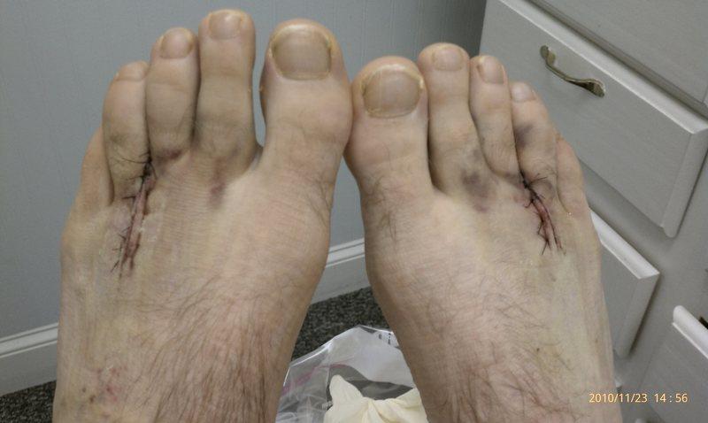 Rock Climbing Photo: Post surgery mortons neuroma