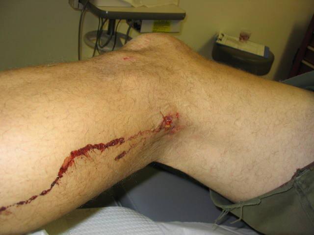 Rock Climbing Photo: Biner injury.