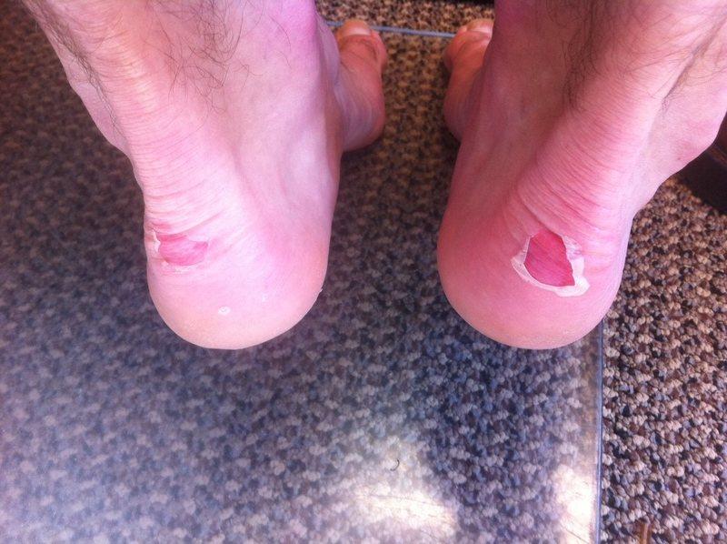 Rock Climbing Photo: blisters