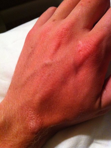 Scars on left hand