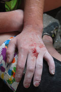 Rock Climbing Photo: lily's hand after working hard... as usual...