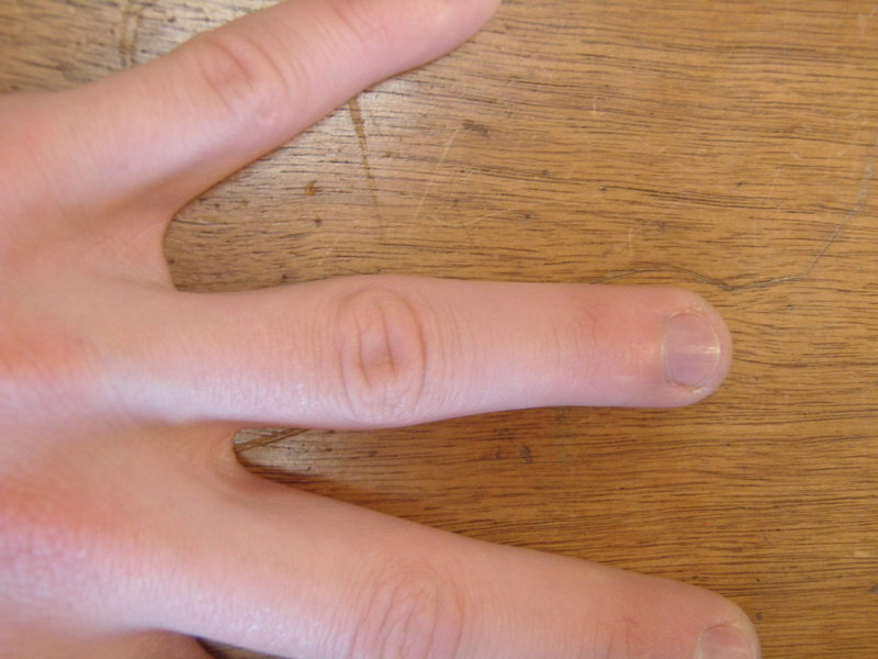 Healthy ring finger