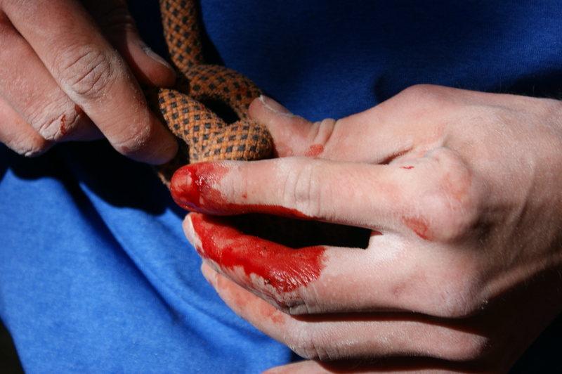 Rock Climbing Photo: Ryan bleeding  Photo by me