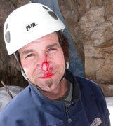Rock Climbing Photo: ice shard to the face