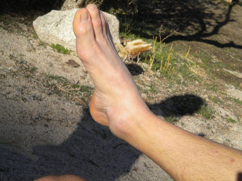 ankle after falling 20'