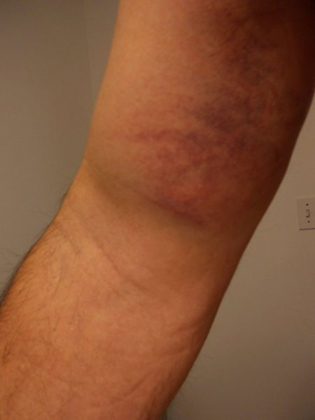 bruises (from the head of the bicep right up through the armpit