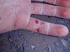 Rock Climbing Photo: The Black Hole taking its toll on my fingers.