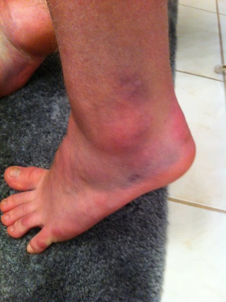 Rock Climbing Photo: Very Ouch :(