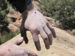 Rock Climbing Photo: sore hand