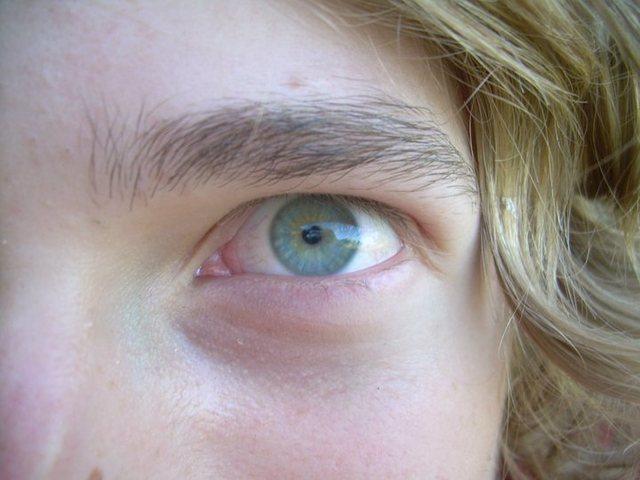 My eyeball
