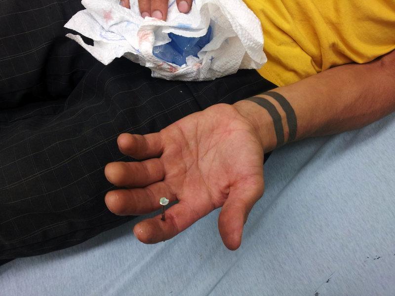 Rock Climbing Photo: Nail vs. Finger