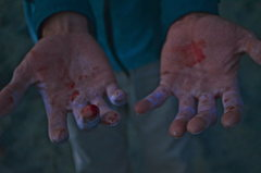 Rock Climbing Photo: bloody hands after near fall on razor sharp holds.